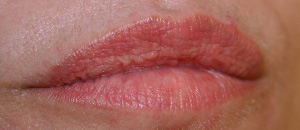 Permanent Cosmetic Design in Boise, ID | Permanent Lip Color