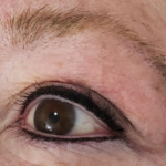 Permanent Eyeliner in Boise, Idaho - After